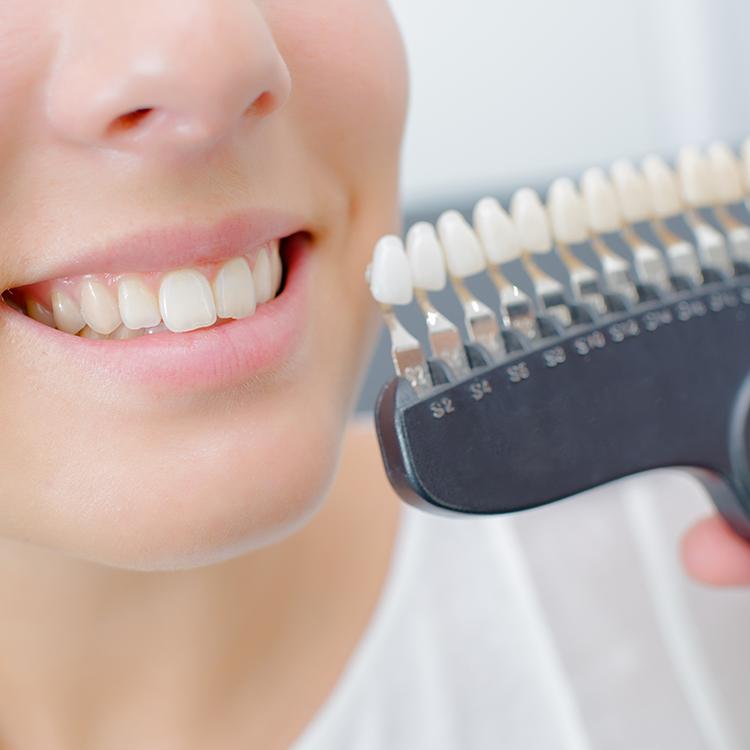 ODs Dental Laboratory- esthetic-temporization- Tustin, CA