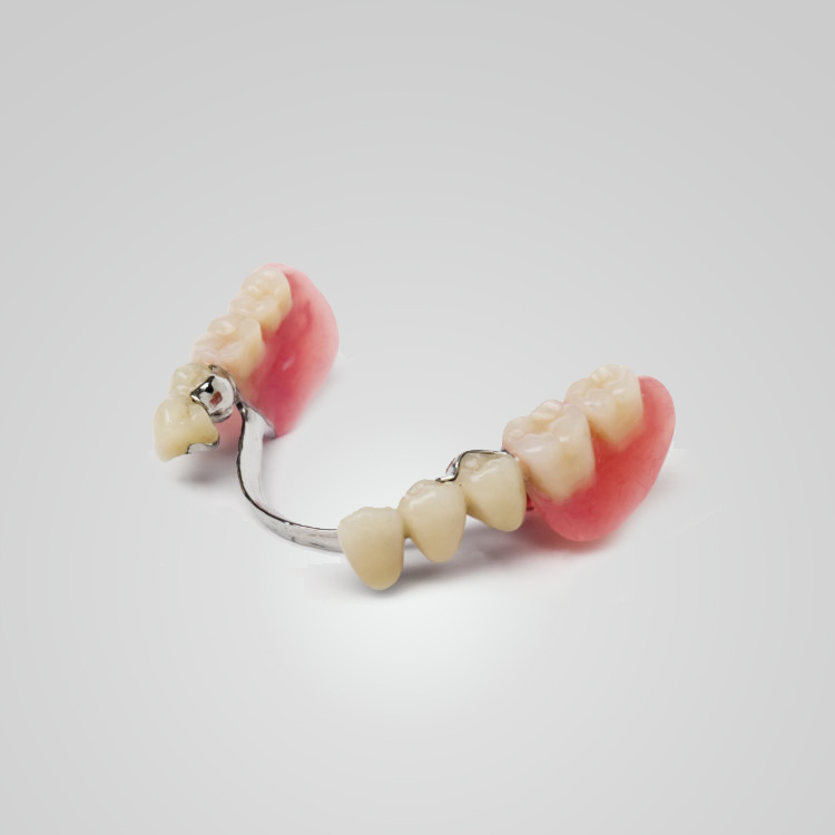 ODs Dental Laboratory- Partial Dentures- Tustin, CA